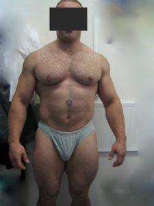 sportsman-epigastric-hernia